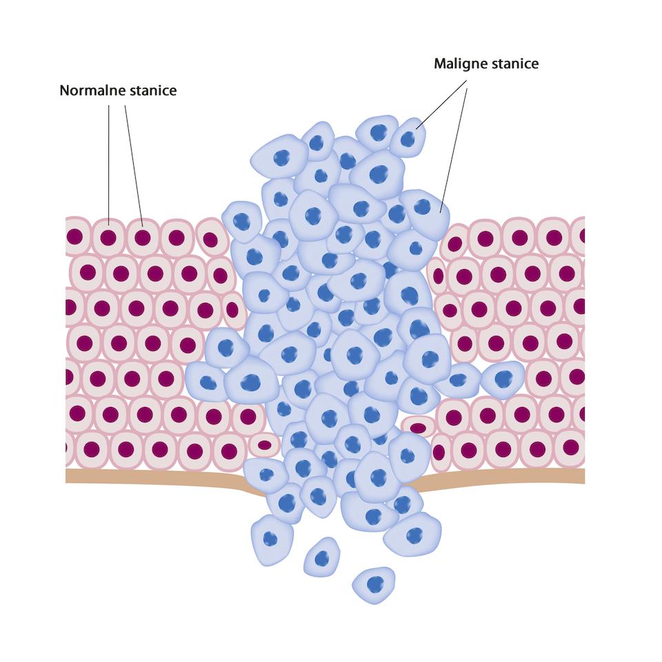 Izgled zdravih i malignih stanica